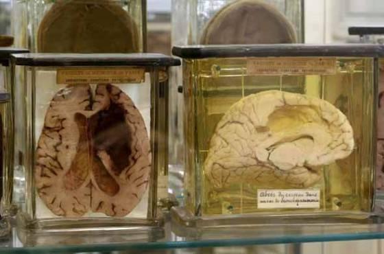 les-curiosites-medicales-du-musee_1-diaporama
